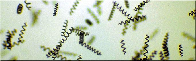 SA1.MicroSpirals9